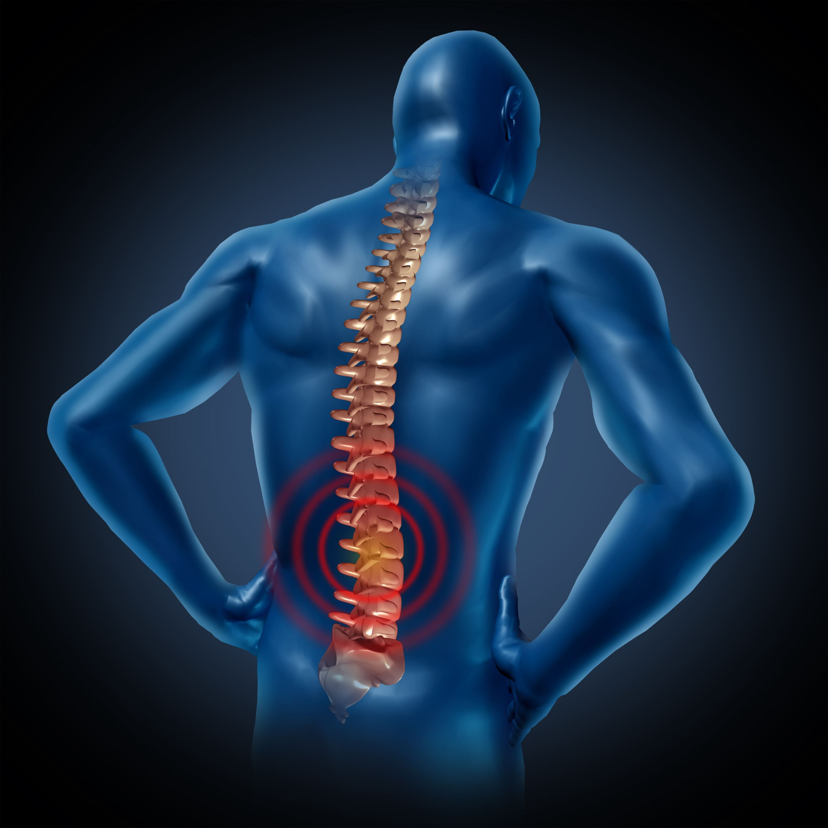 Spinal Cord Injuries In The Us Givens Givens Sparks